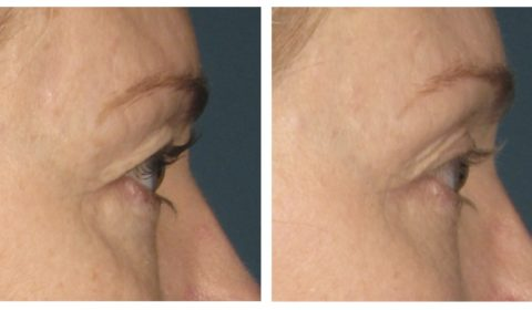 Before and after of Ultherapy at Accent Aesthetics in Galloway New Jersey